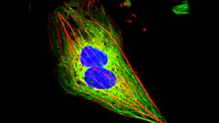 Nocodazole induced disassemblent of microtubules but not actin