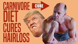 Carnivore Diet CURES Hair Loss and Male Pattern Baldness?