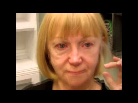 Miraclelift - The 3 Minute Facelift - botox in a bottle