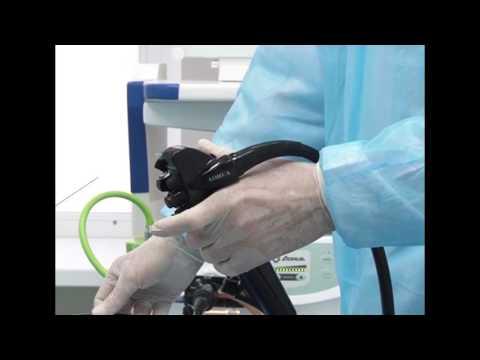 Гастроскопия и колоноскопия легко и без боли
