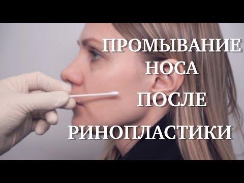 Как правильно промывать нос после ринопластики