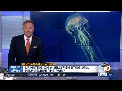 Urinate On Jellyfish Stings?