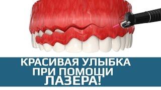 Хирургическая стоматология. Гингивэктомия. Подрезание десны лазером.(, 2017-03-16T15:09:43.000Z)