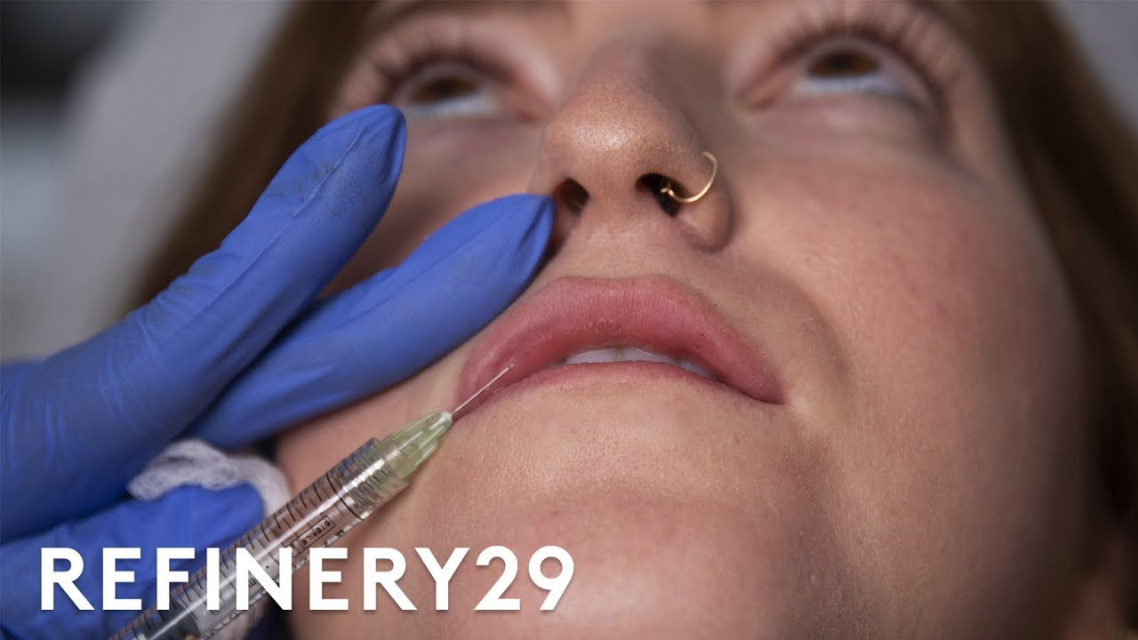 Why I Got A Dozen Injections Of Lip Filler | Macro Beauty