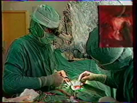Hernie discale opération