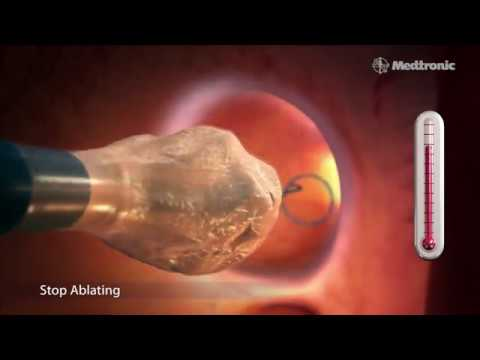 Medtronic's Arctic Front Advance® Cardiac CryoAblation Catheter system