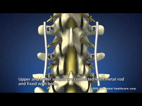 Treatment of lower back pain (PLF Therapy)