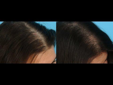 la-solución-a-mi-caída-de-cabello
