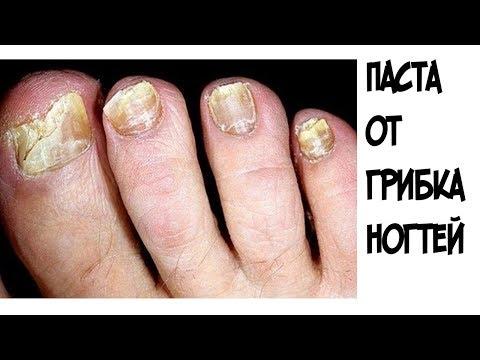 Избавиться от грибка ногтей дома