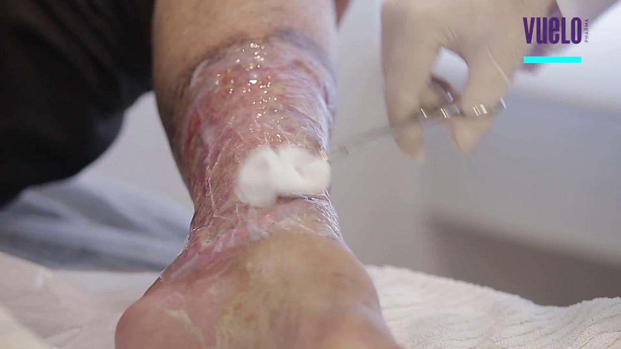 Úlceras pernas tratamento para melhor nas