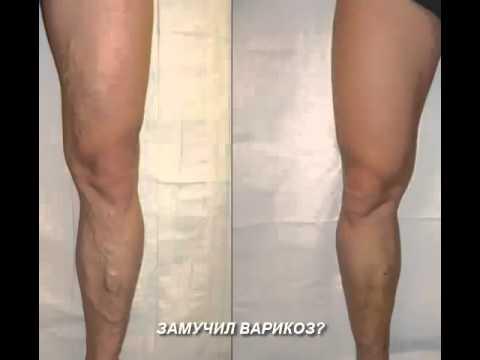 варикоз ног 2 степени - YouTube