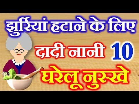 10 Home Remedies For Wrinkles On Face | दादी नानी घरेलू नुस्खे | Jurriyo Ke Liye Gharelu Upay