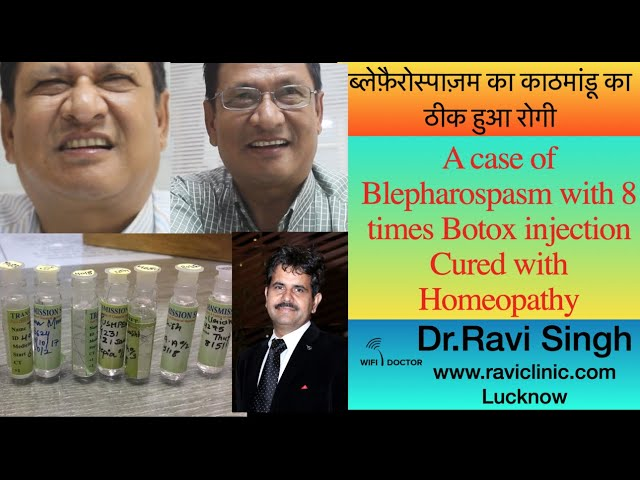 Blepharospasm cured by Homeopathy after 8 times Failed Botox- Kathmandu Case