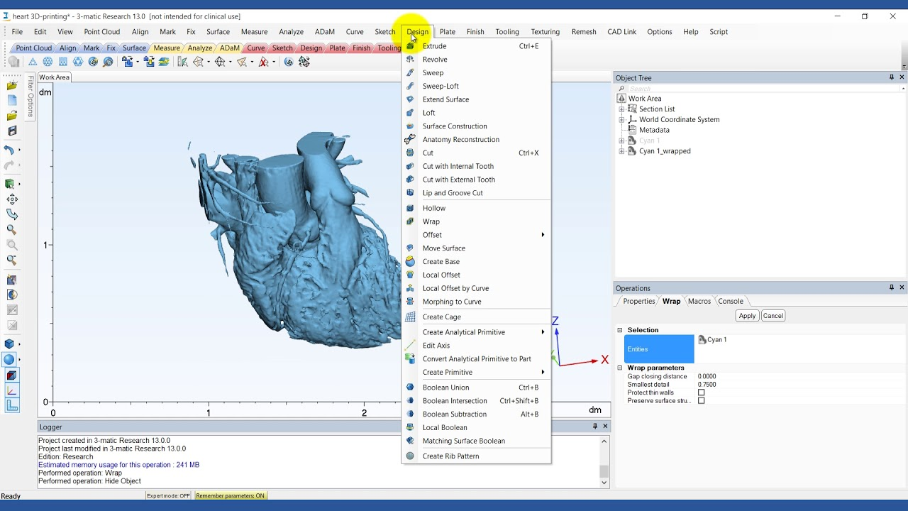 How to Create a Heart Model for 3D Printing | Mimics Innovation Suite | Materialise Medical