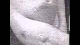 Rotten Piece -   Skin Trouble