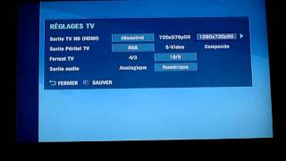 [Résolu] Problème sortie HD avec décodeur TV SFR