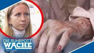Säure-Angriff! War es Rache vom Ex? | Die Ruhrpottwache | SAT.1