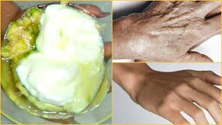 GET RID OF HAND ROUGHNESS AND DRYNESS, GET BABY SOFT HANDS IN MINUTES |Khichi Beauty