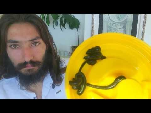 Видео Лечение на целулит