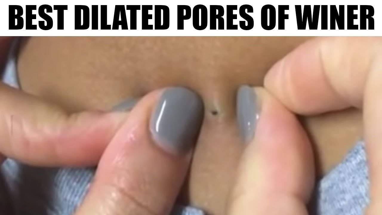 blackheads, dilated pore of winer and tonsil stones! top 3 - youtube, Skeleton