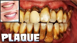 Dental Plaque, Tooth Cleaning & Teeth Whitening!