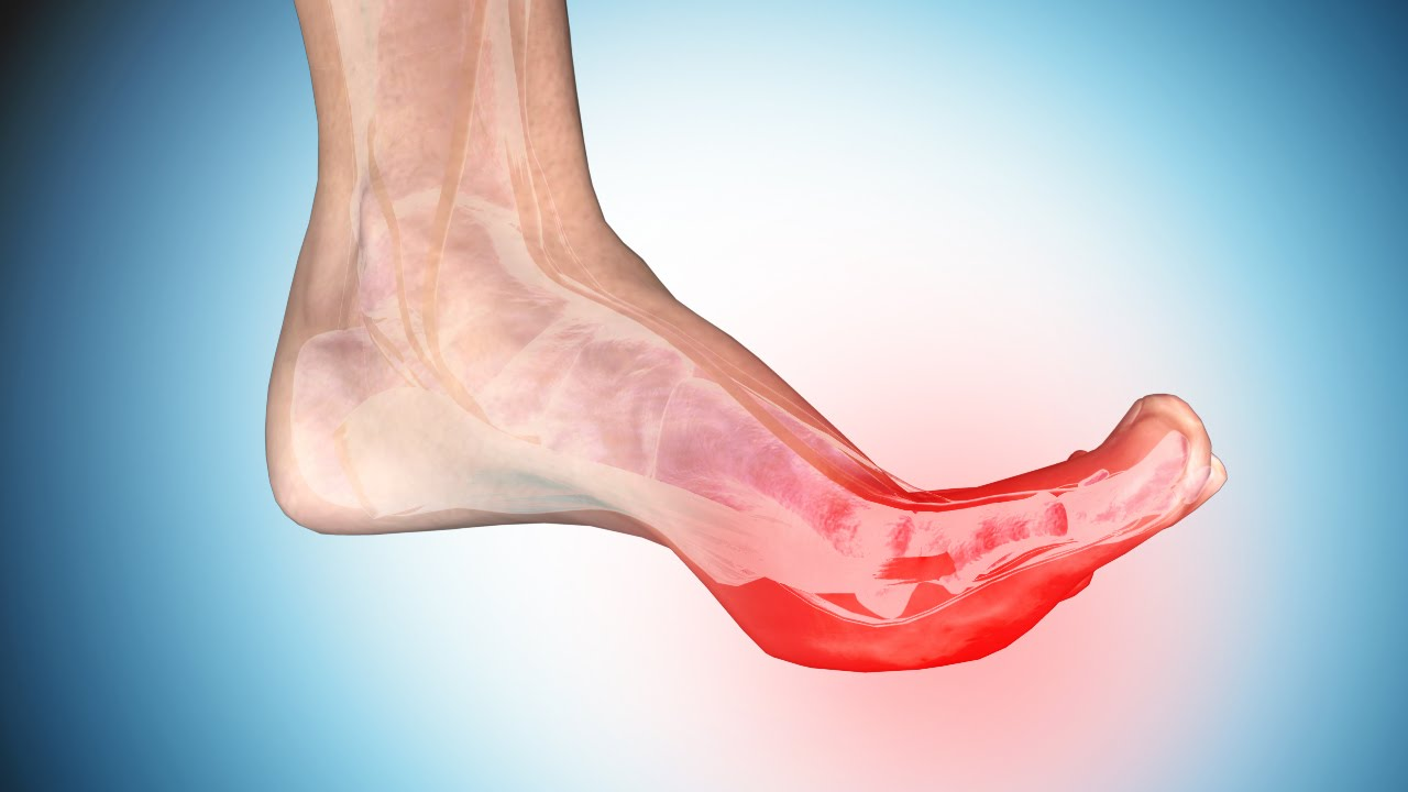 b42fb1c052 Foot Cramps: Causes and Ways to Get Rid of Cramps in Foot and Toe - YouTube