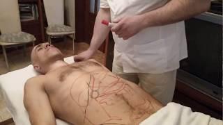 Обучение Мануальному массажу: - Как делать Висцеральный массаж живота!
