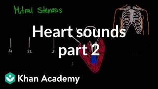 Systolic murmurs, diastolic murmurs, and extra heart sounds - Part 2