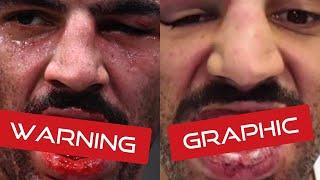 UFC Fighter crushing Blow Highlights: Devin Clark Injury Update