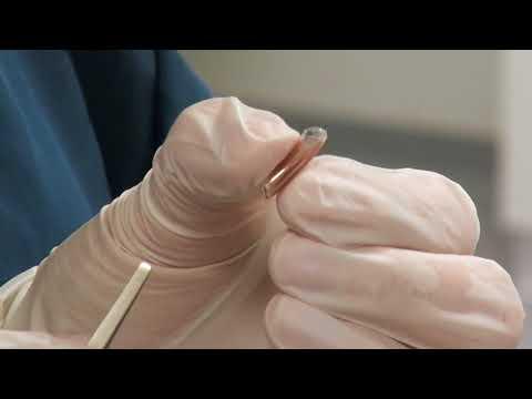 A retinal implant