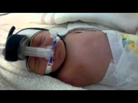 hqdefault - Les principales étiologies d'une détresses respiratoires néonatales