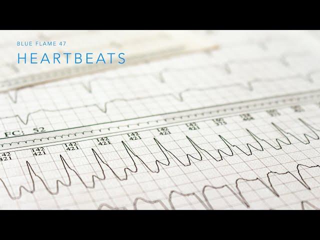 Session 8 - Heartbeats Part 2