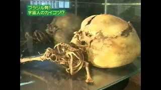 UMA   ブラジル発!宇宙人の骸骨