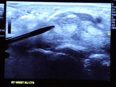 ultrasound guided carpal tunnel injection