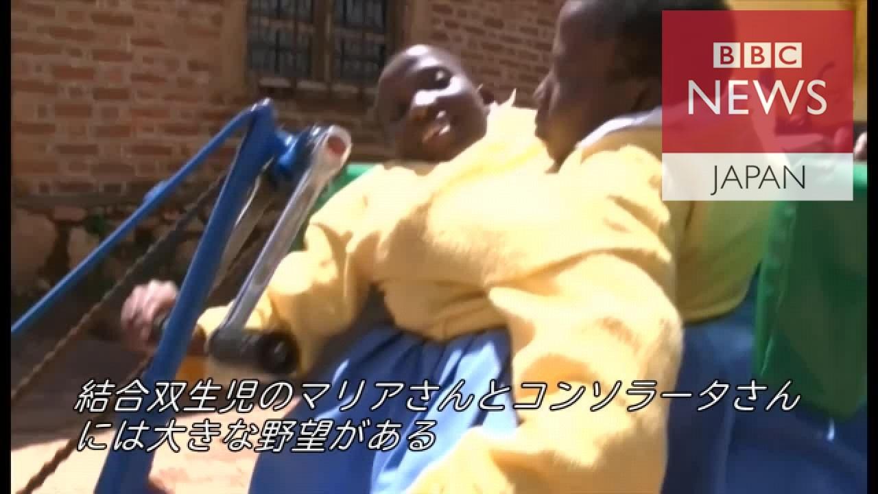 双生児 日本 結合
