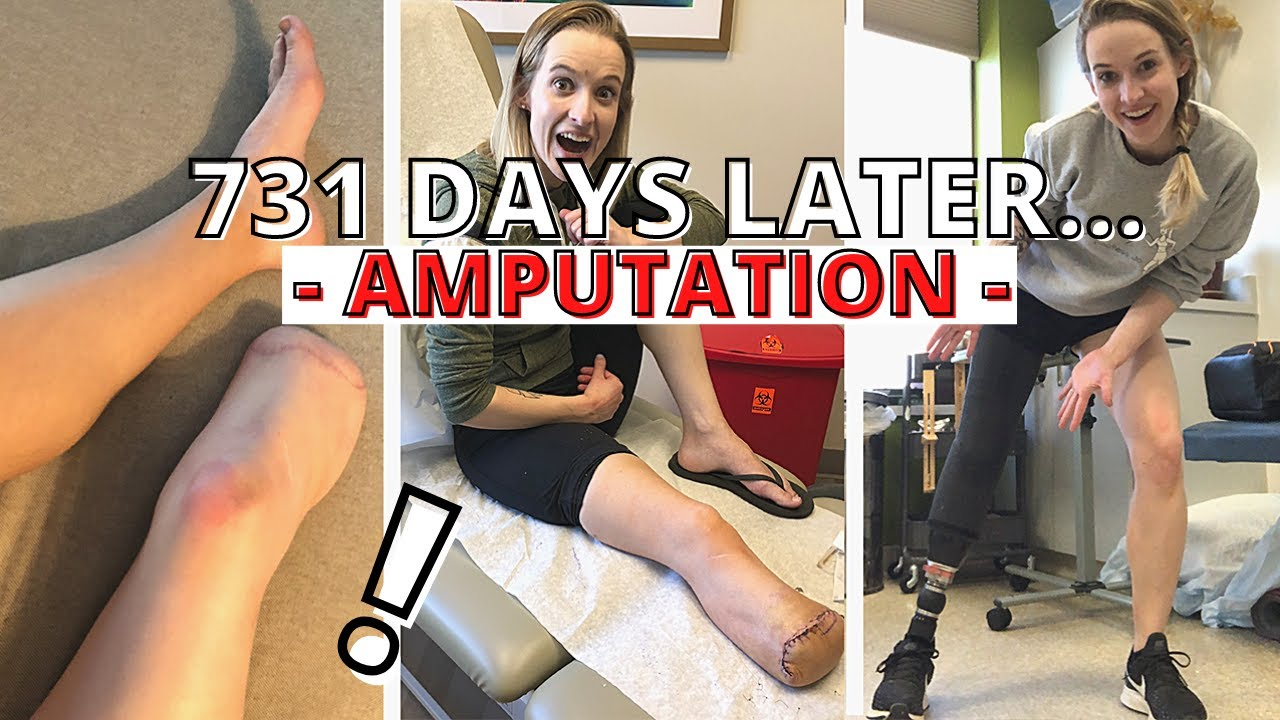 731 DAYS AN AMPUTEE: Revisiting My Amputation Decision...