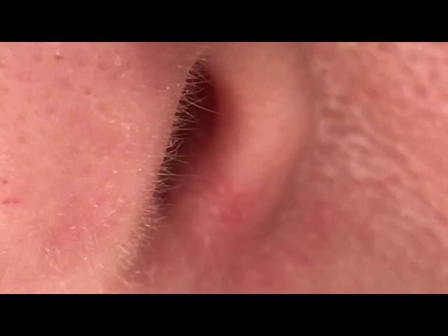 Revision Rhinoplasty Incision Close-Up 7 Years Out