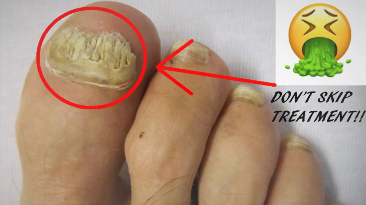 Kill Aggressive Toenail Fungus Naturally With These Easy To Follow ...