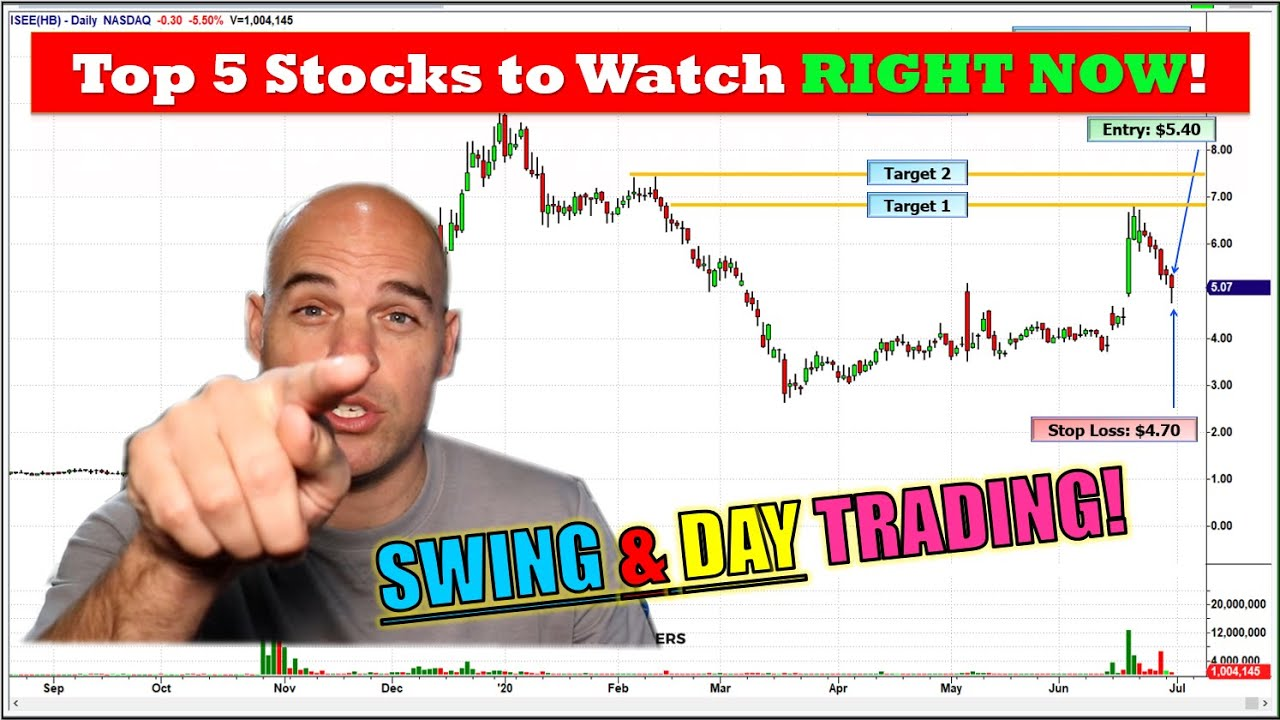 Top 5 Stocks to Watch RIGHT NOW!