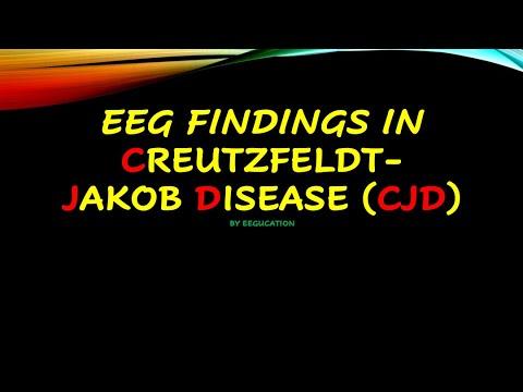 EEG findings in Creutzfeldt-Jakob Disease (CJD)