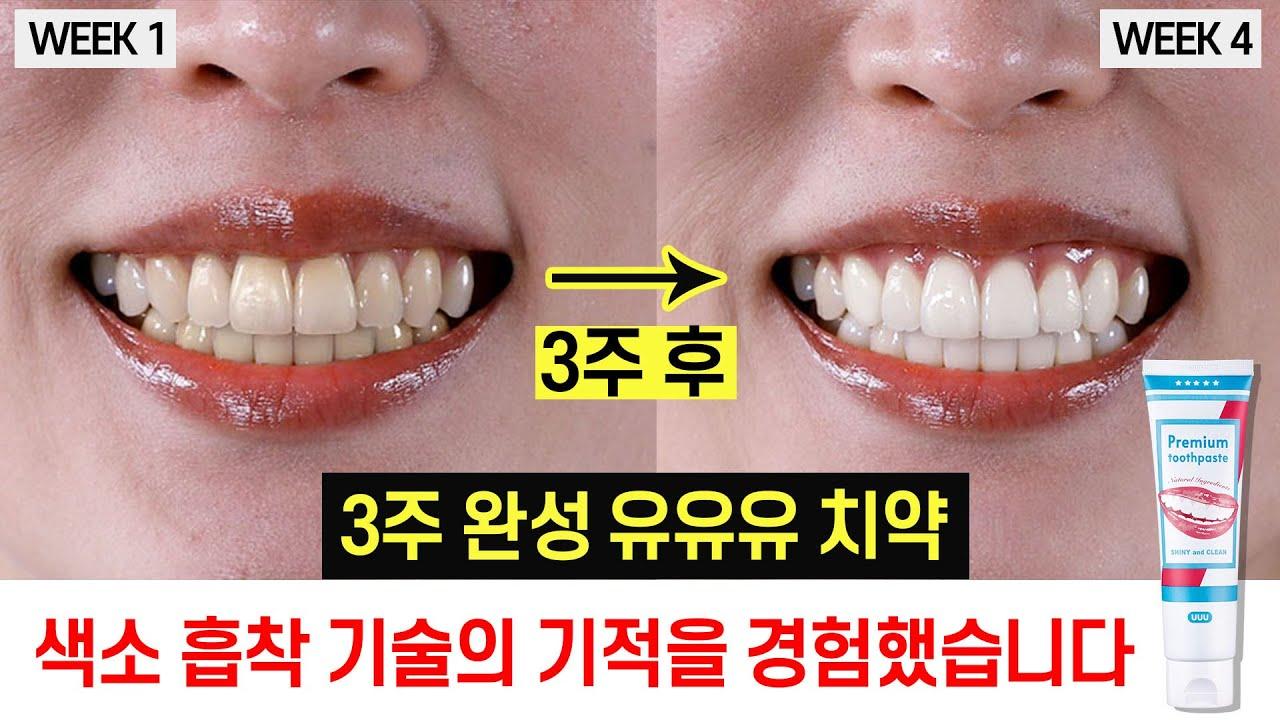 누렁니 환골탈태 3주면 끝! 유유유 치약 색소 흡착 성분의 기적