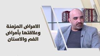 د. خالد عبيدات -  الامراض المزمنة وعلاقتها بأمراض الفم والاسنان