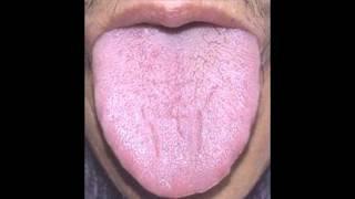 видео На языке язвочка – чем лечить болячки сбоку, в центре и на кончике языка у взрослых и детей
