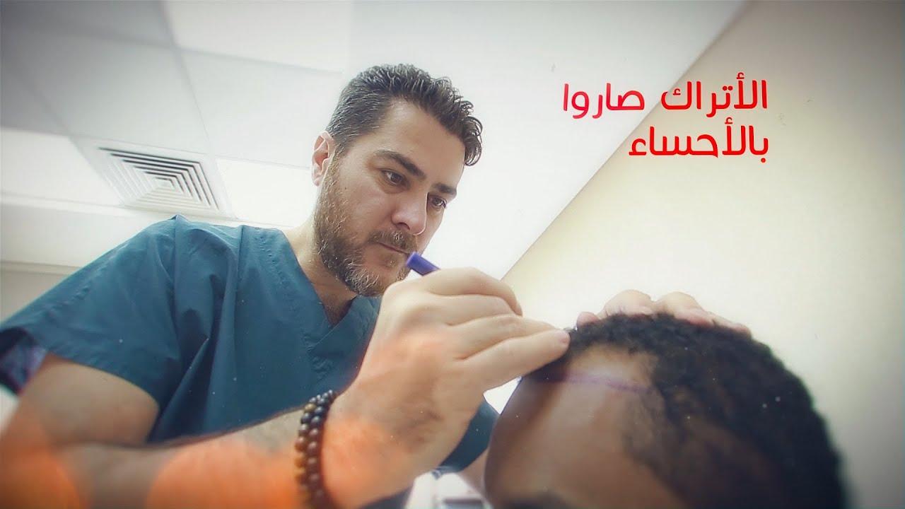 الان بالاحساء طاقم تركي لزراعة الشعر بالاقتطاف Fue بمستشفى الموسى التخصصي Youtube