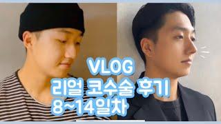 코성형수술 8일~14일차(일주일) 리얼후기 Vlog(3…