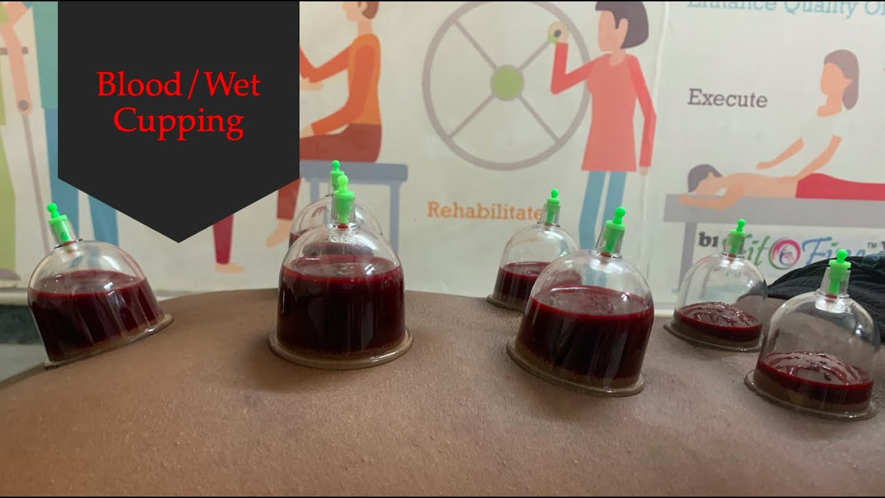 Blood/Wet Cupping