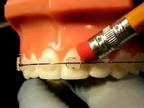 Bracesquestions.com - Braces Problems: Pain, Poking Wire, Sore ...