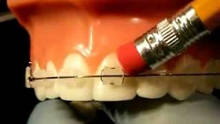 Bracesquestions.com - Braces Problems: Pain, Poking Wire, Sore Teeth, Broken Bracket