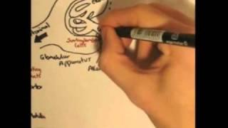 Renin-Angiotensin System (Renin,Prorenin)