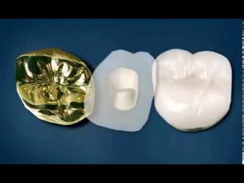 Циркониевые коронки на зубы (установка)